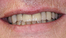 Smile Makeover with Dentures and Crowns After