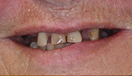 Smile Makeover with Dentures and Crowns Before
